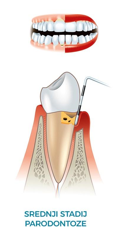 Parodontologija |Dentalna implantologija i estetika Koran