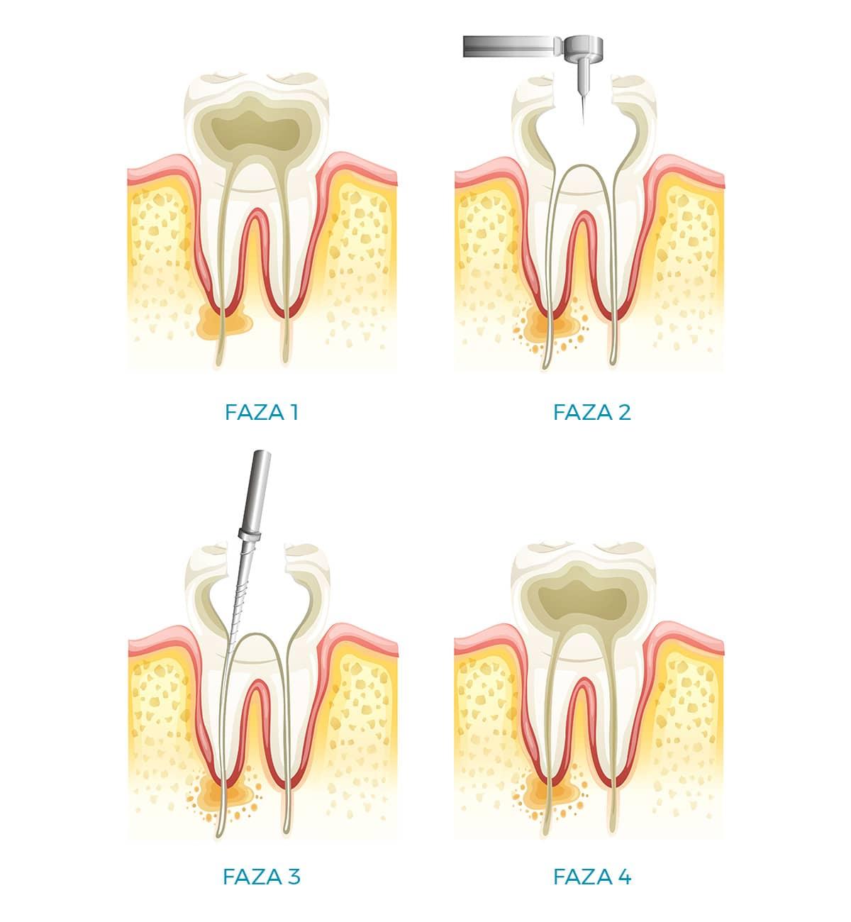 Endodoncija |Dentalna implantologija i estetika Koran